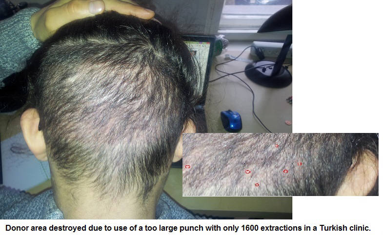 The Dangers Of A Cheap Hair Transplant In Turkey